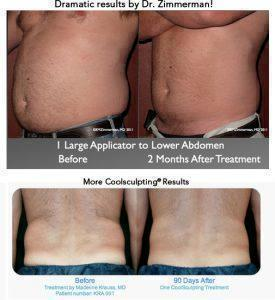 Are CoolSculpting And Laser Lipolysis Comparable Regarding Results on