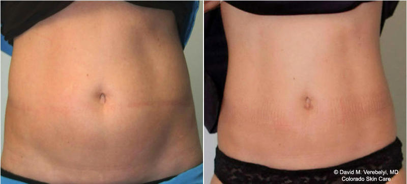 One Treatment Of Coolsculpting » Cryolipolysis: Info, Prices ... on