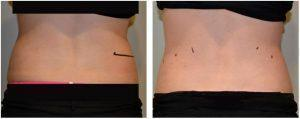 Coolsculpting Seattle Cost And Photos » Cryolipolysis: Info, Prices