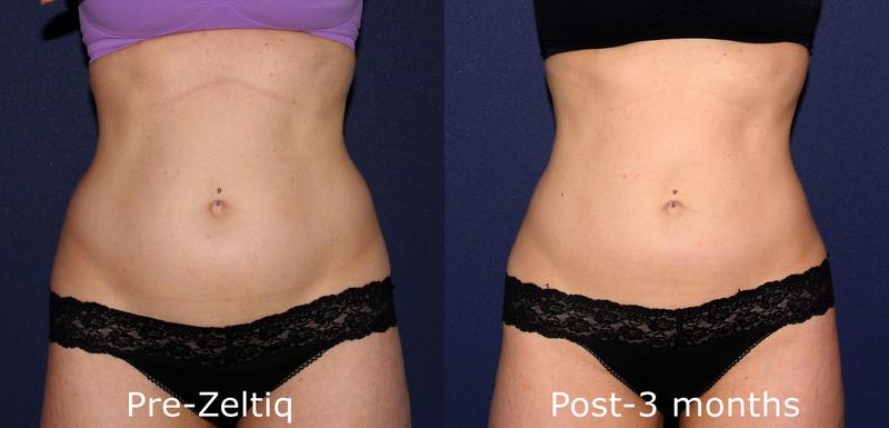 san diego dermatologists coolsculpting - HD 5184×2496