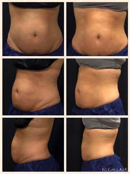 san diego dermatologists coolsculpting - 539×719