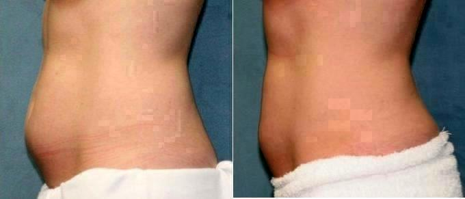 san diego dermatologists coolsculpting - 680×291