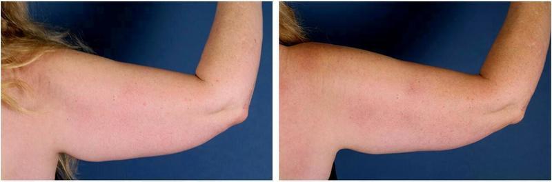 Fat Freezing Of Arms At Westlake Dermatology & Cosmetic