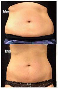 Cryolipolysis Treatment In Bellevue, WA: Prices And Photos