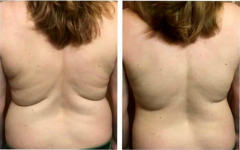 Images Of Coolsculpting For Lower Back Fat Cryolipolysis Info Prices Photos Reviews Q A