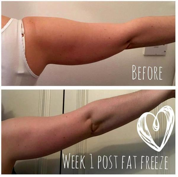 Cryo Fat Freezing Treatment For Arms » Cryolipolysis Info, Prices ...